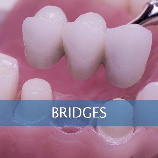 Bridges - Crowns - Dental Hygene - Teeth Whitening - Veneers - Dental Implants - Dentures - Exractions - Root Canals, Crown Lenghtening - Post Op Instructions - Framingham Dentists, Unique Dental of Framingham.