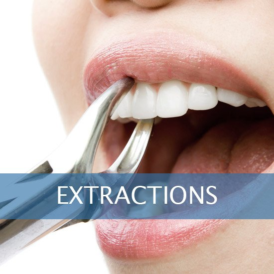 Exractions - Root Canals, Crown Lenghtening - Post Op Instructions - Framingham Dentists, Unique Dental of Framingham.