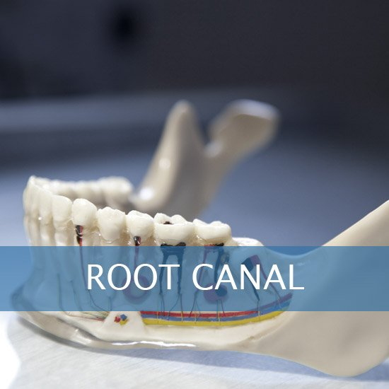 Root Canals, Crown Lenghtening - Post Op Instructions - Framingham Dentists, Unique Dental of Framingham.