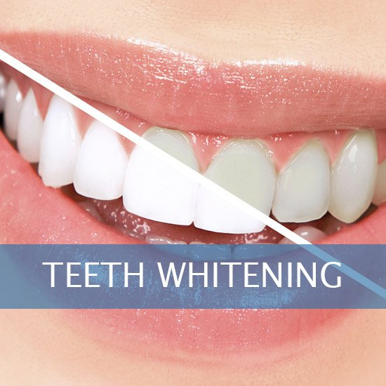 Teeth Whitening - Veneers - Dental Implants - Dentures - Exractions - Root Canals, Crown Lenghtening - Post Op Instructions - Framingham Dentists, Unique Dental of Framingham.